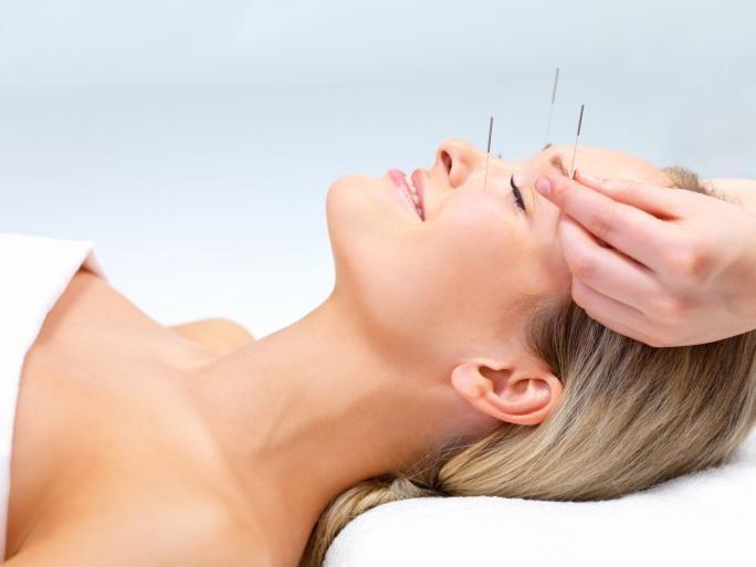 acupuntura para que serve, tratamento de acupuntura, acupuntura funciona