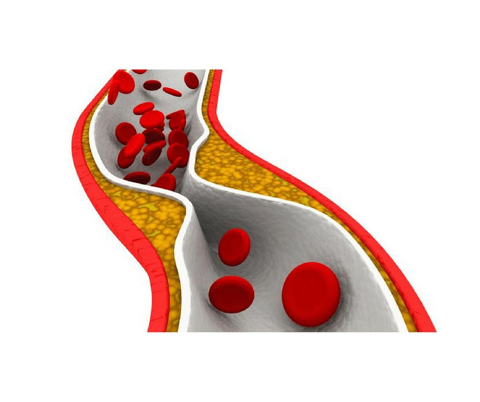 estatinas, remédio para colesterol alto, colesterol alto, colesterol ruim, efeitos colaterais das estatinas, infarto e colesterol