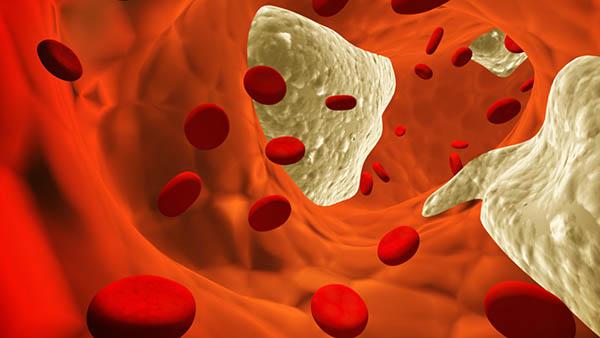 colesterol elevado, colesterol ruim, colesterol bom, níveis de colesterol, colesterol exames, colesterol ldl, colesterol hdl, triglicerídeos, triglicérides