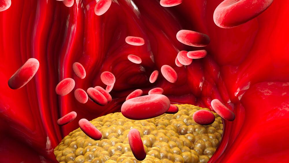 triglicérides, triglicerídeos coração, triglicerídeos doença cardiovascular, triglicerídeos elevados, triglicérides altos, remédio para triglicerídeos, triglicérides normal