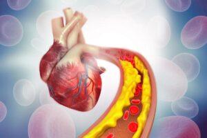 o que gordura saturada, gordura saturada ou insaturada, colesterol ldl alto, colesterol hdl alto, qual colesterol bom